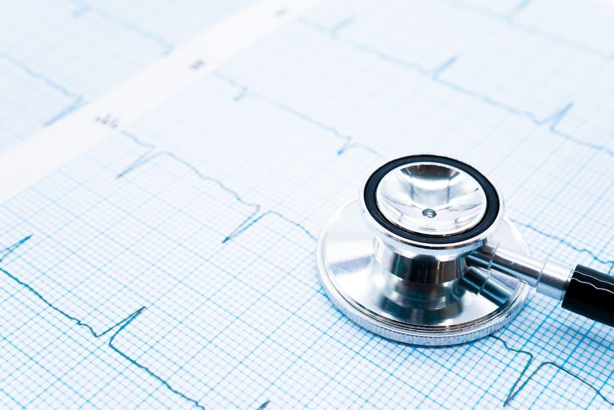 健診で心電図異常を指摘された方への画像